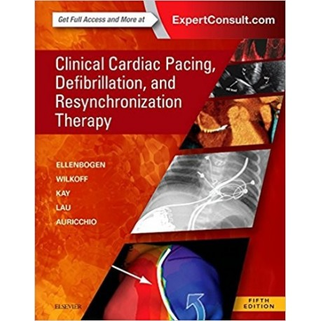 CLINICAL CARDIAC PACING, DEFIBRILLATION AND RESYNCHRONIZATION THERAPY (ONLINE AND PRINT)