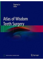 ATLAS OF WISDOM TEETH SURGERY