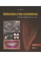 ADHESION A LAS CERAMICAS. EVIDENCIAS CIENTIFICAS PARA EL USO CLINICO