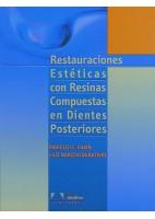 RESTAURACIONES ESTETICAS CON RESINAS COMPUESTAS EN DIENTES POSTERIORES