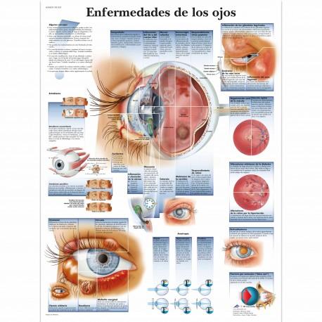 ENFERMEDADES DE LOS OJOS (VR-3231)