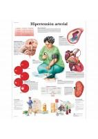 HIPERTENSION ARTERIAL (VR-3361)
