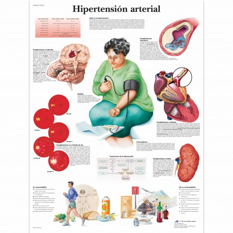 HIPERTENSION ARTERIAL (VR-3361)