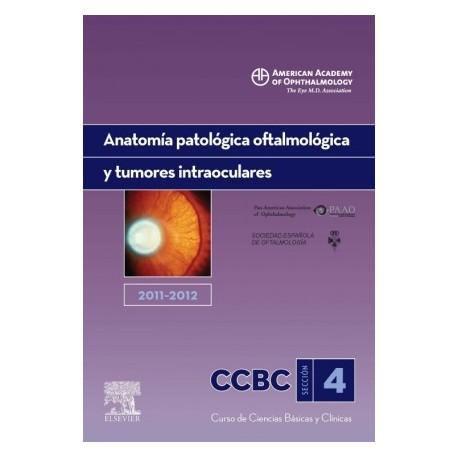 ANATOMIA PATOLOGICA OFTALMICA Y TUMORES INTRAOCULARES. 2011-2012: SECCION 4